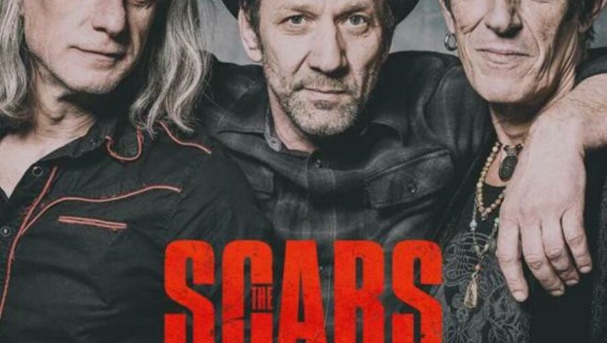 The Scabs
